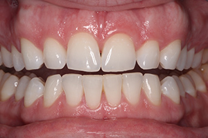 tooth-whitening-after