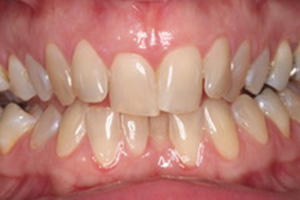 Fast Braces in Cornwall | How to get straight teeth
